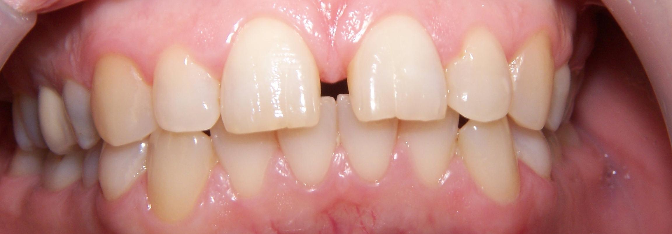 Dental Case Studies Plymouth Smile Care
