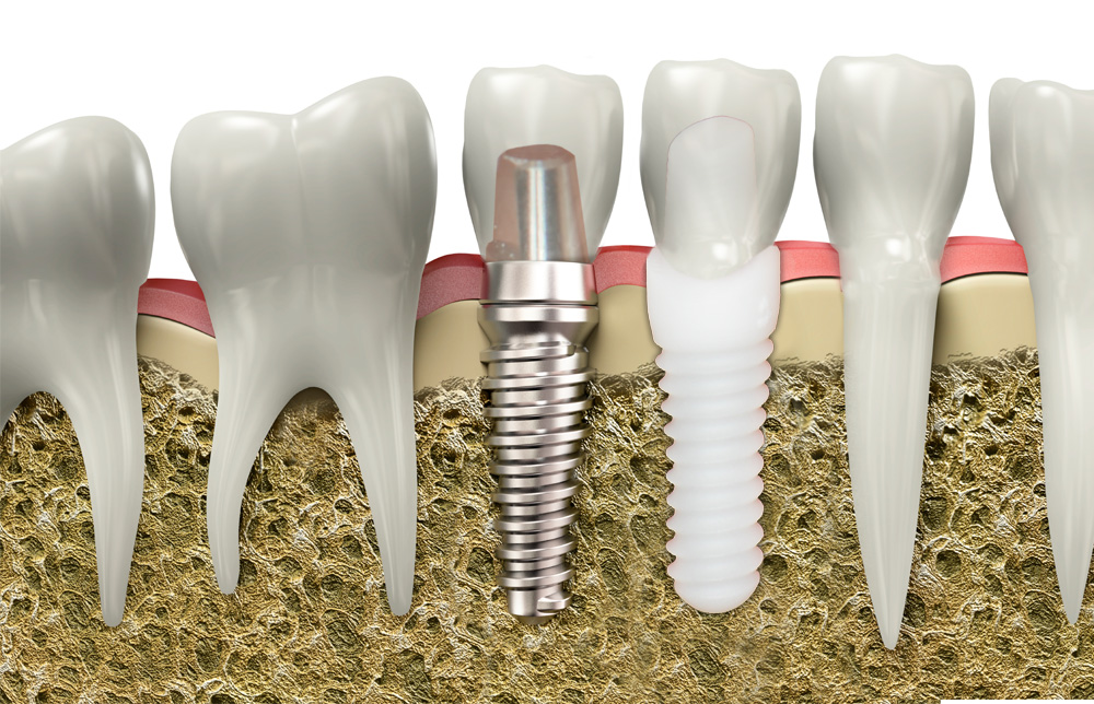 All Ceramic Implants - Dental Implants Services Plymouth