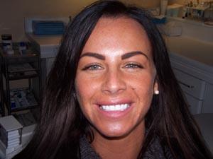 Jodie Dart Smile After
