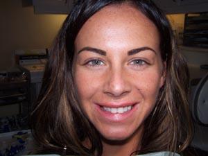 Jodie Dart Smile Before