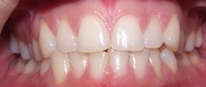 Jodie Dart Teeth Before