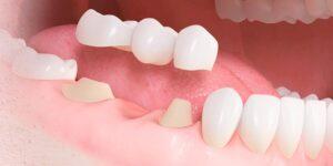 SmileCare Plymouth Dental Bridges