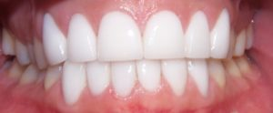 Dental Teeth Whitening:  Should You Consider It?
