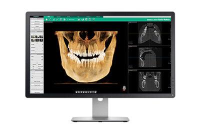 3D x-ray referrals